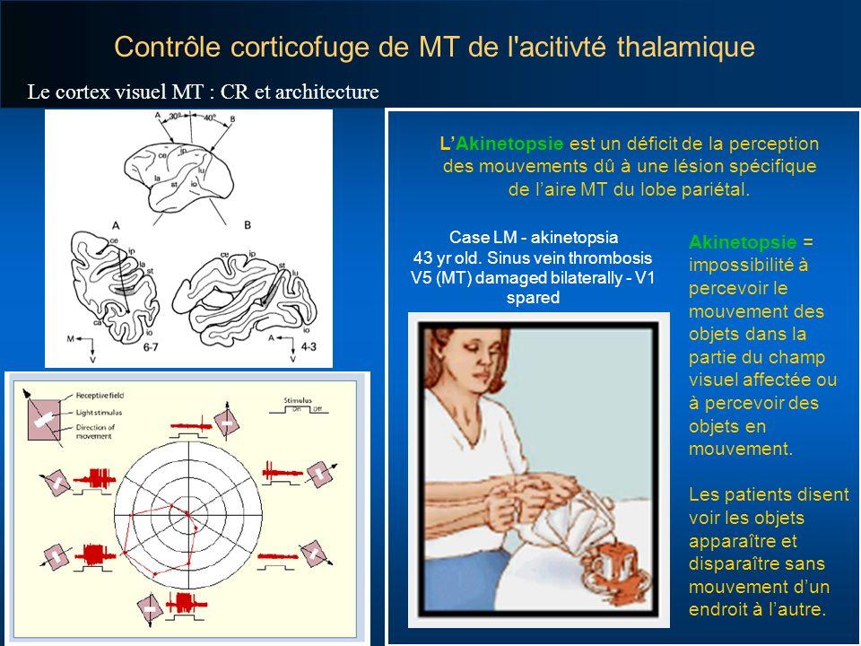 Contrôle corticofuge de MT de l acitivté thalamique