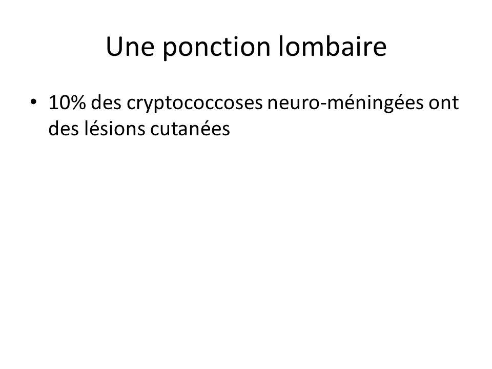 Une ponction lombaire 10% des cryptococcoses neuro-méningées ont des lésions cutanées