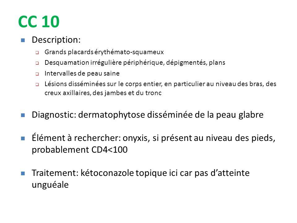 CC 10 Description: Grands placards érythémato-squameux. Desquamation irrégulière périphérique, dépigmentés, plans.