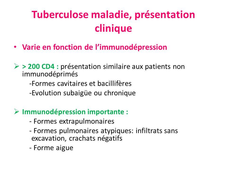 Tuberculose maladie, présentation clinique