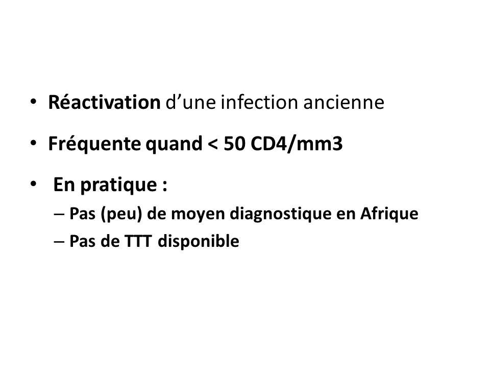 Réactivation d'une infection ancienne Fréquente quand < 50 CD4/mm3