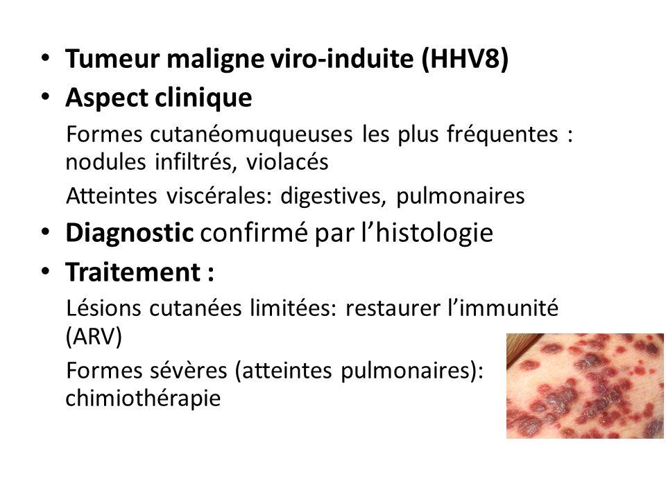 Tumeur maligne viro-induite (HHV8) Aspect clinique
