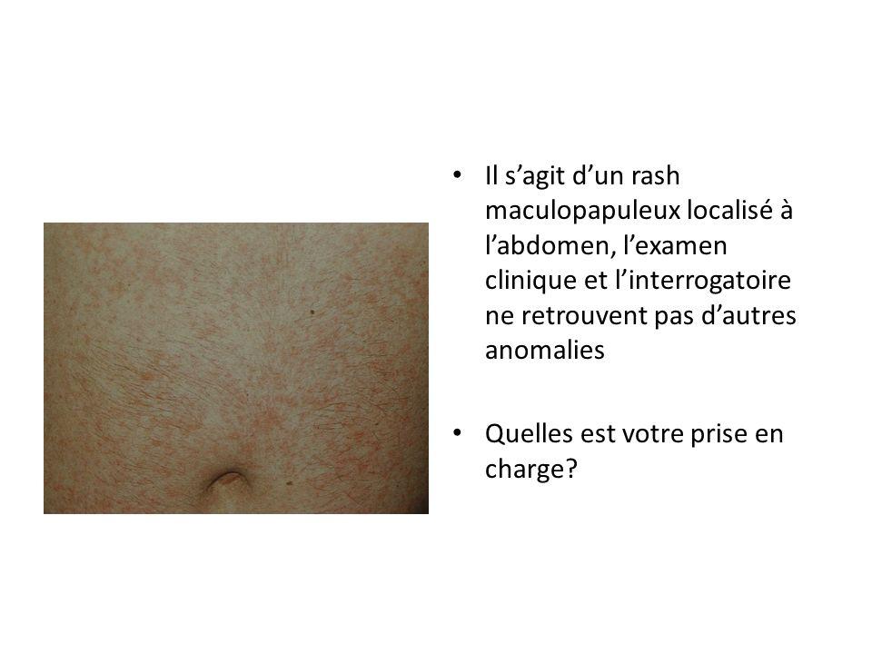 Il s'agit d'un rash maculopapuleux localisé à l'abdomen, l'examen clinique et l'interrogatoire ne retrouvent pas d'autres anomalies