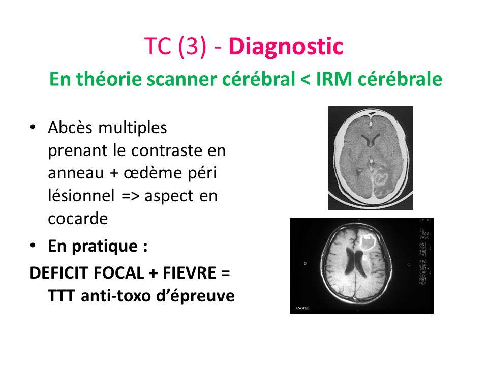 En théorie scanner cérébral < IRM cérébrale