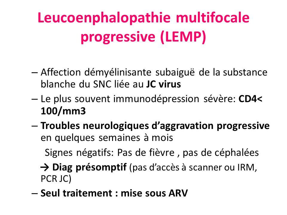 Leucoenphalopathie multifocale progressive (LEMP)
