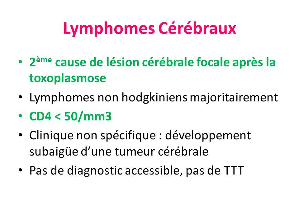 Lymphomes Cérébraux 2ème cause de lésion cérébrale focale après la toxoplasmose. Lymphomes non hodgkiniens majoritairement.