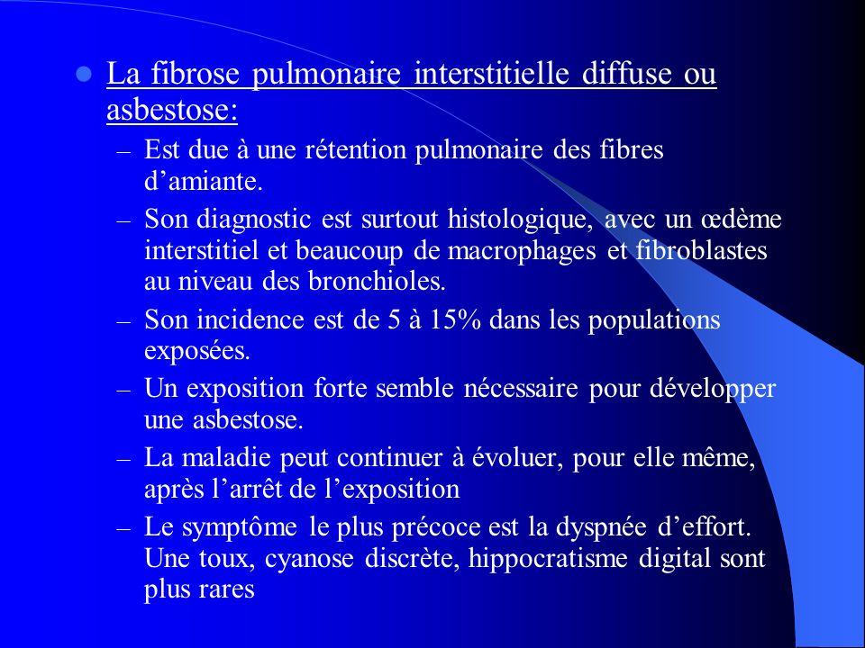 La fibrose pulmonaire interstitielle diffuse ou asbestose: