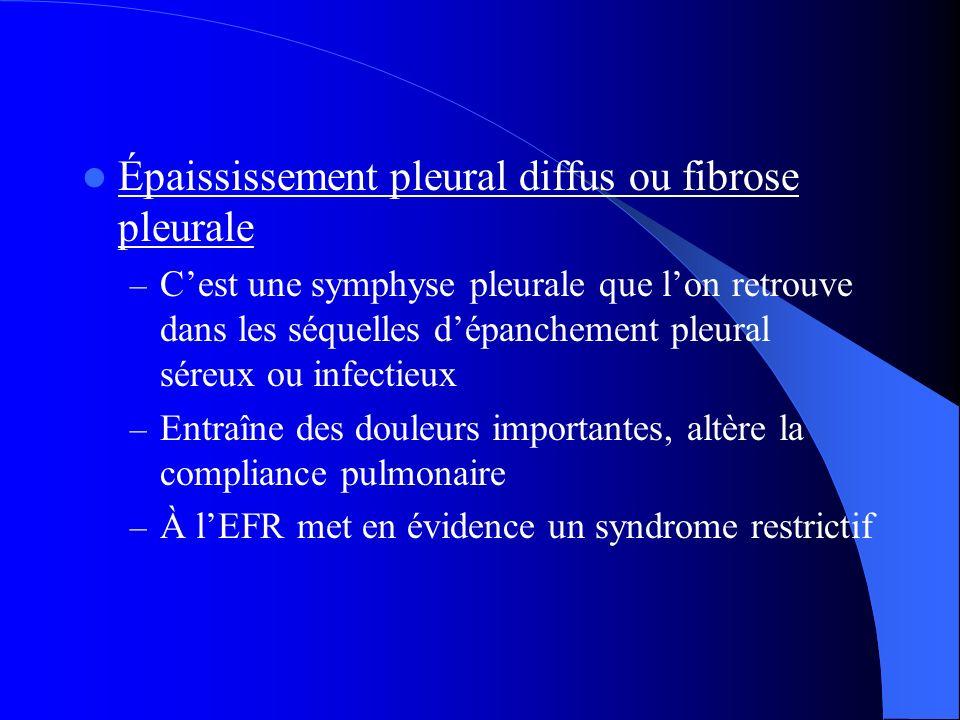 Épaississement pleural diffus ou fibrose pleurale