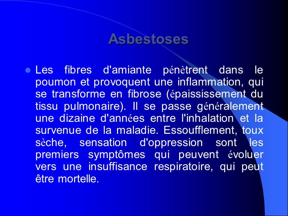 Asbestoses