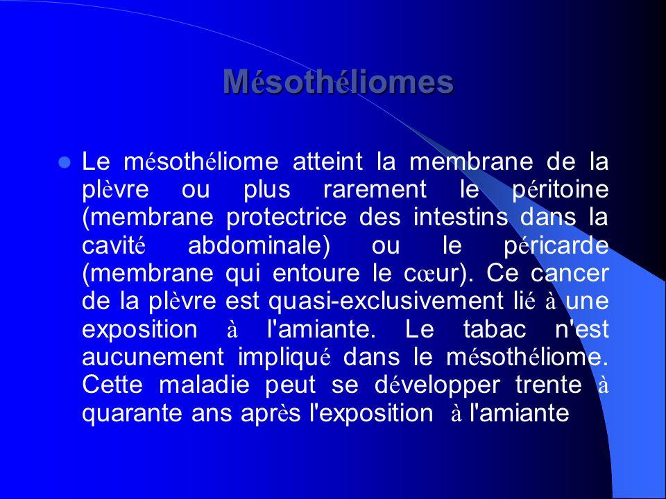 Mésothéliomes