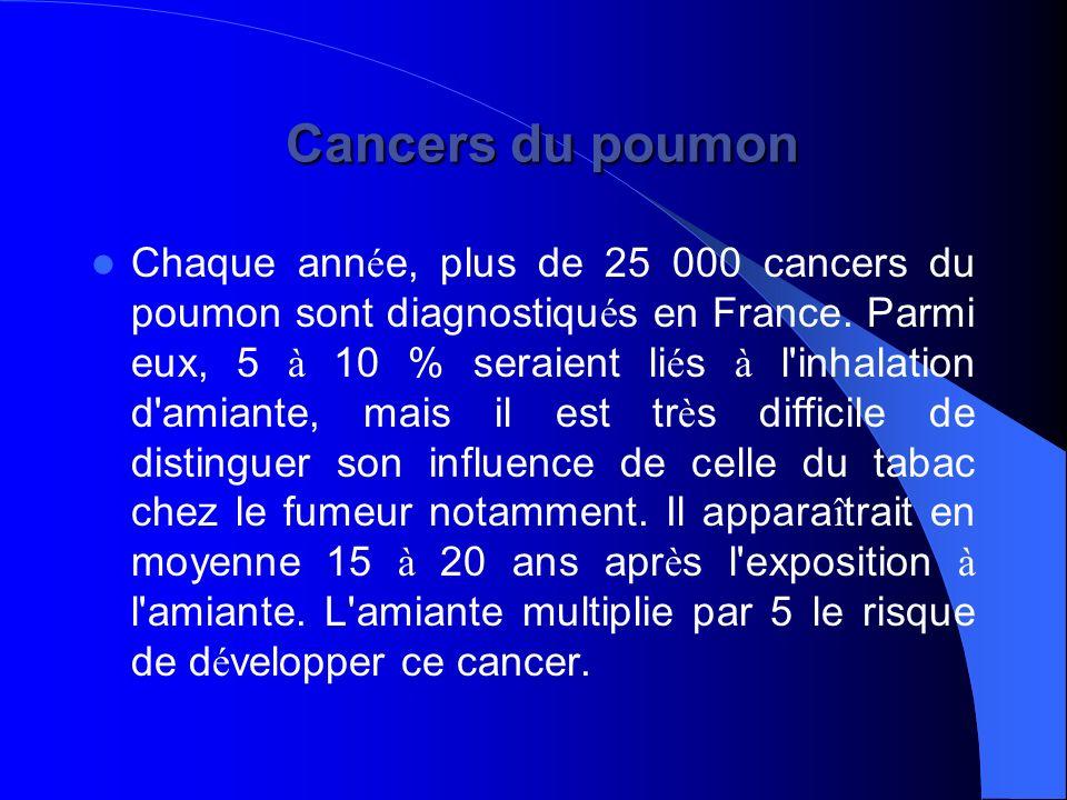 Cancers du poumon