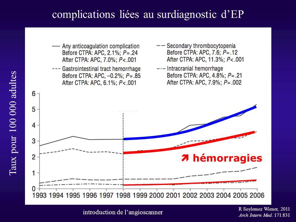 complications liées au surdiagnostic d'EP