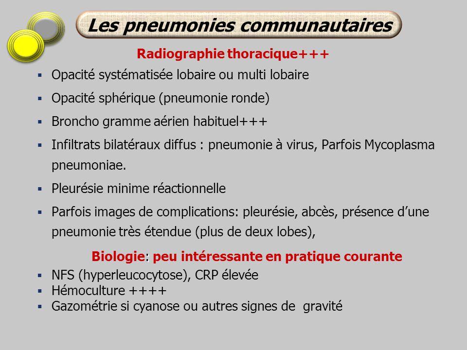 Les pneumonies communautaires Radiographie thoracique+++