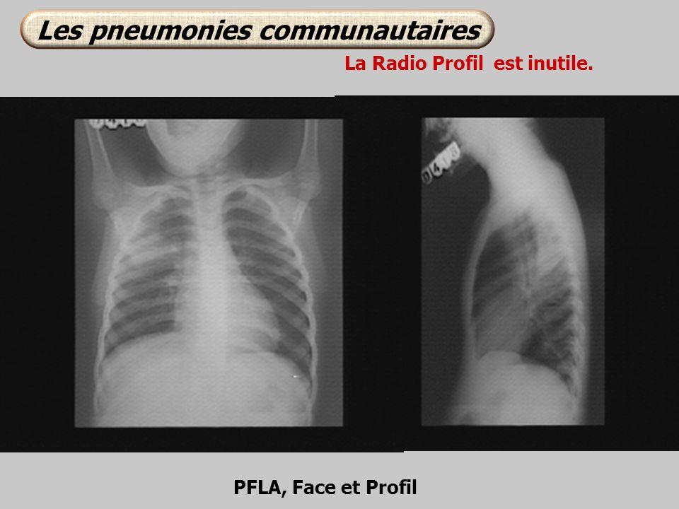 Les pneumonies communautaires La Radio Profil est inutile.