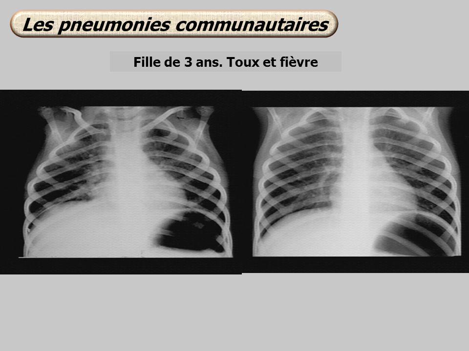 Les pneumonies communautaires Fille de 3 ans. Toux et fièvre
