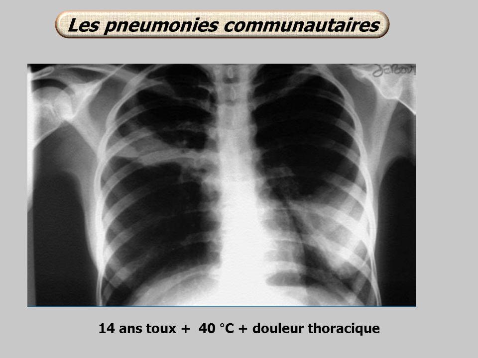 Les pneumonies communautaires 14 ans toux + 40 °C + douleur thoracique