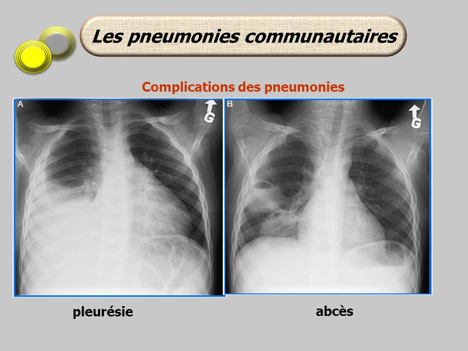 Les pneumonies communautaires Complications des pneumonies