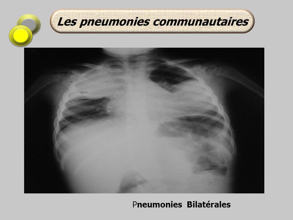 Les pneumonies communautaires