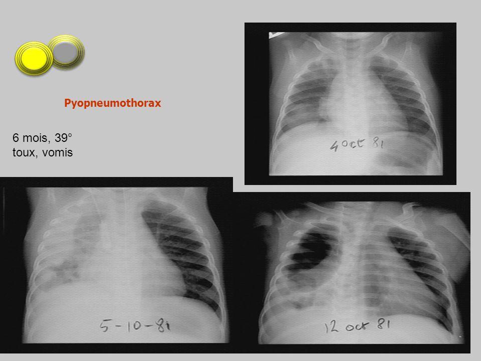 Pyopneumothorax 6 mois, 39° toux, vomis