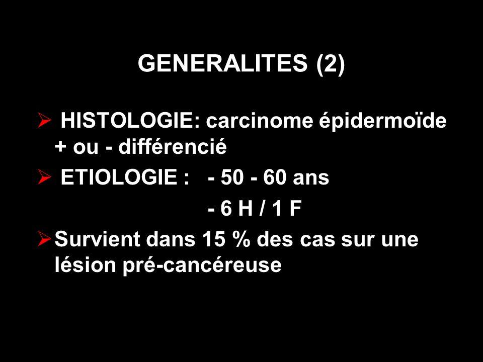 GENERALITES (2) HISTOLOGIE: carcinome épidermoïde + ou - différencié
