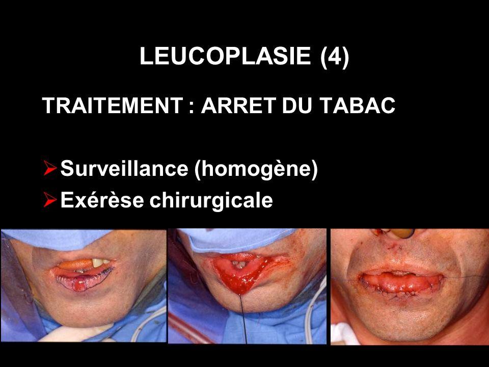 LEUCOPLASIE (4) TRAITEMENT : ARRET DU TABAC Surveillance (homogène)