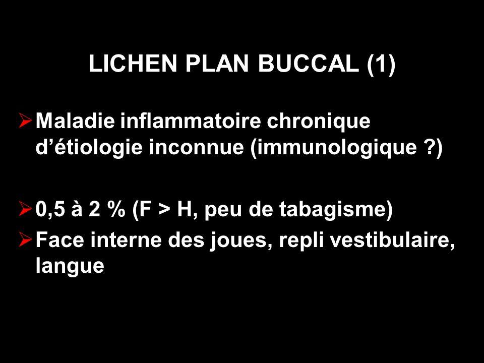 LICHEN PLAN BUCCAL (1) Maladie inflammatoire chronique d'étiologie inconnue (immunologique ) 0,5 à 2 % (F > H, peu de tabagisme)