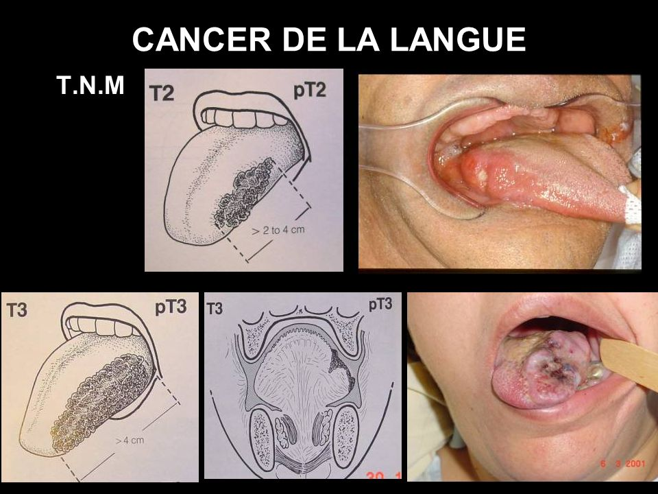 CANCER DE LA LANGUE T.N.M