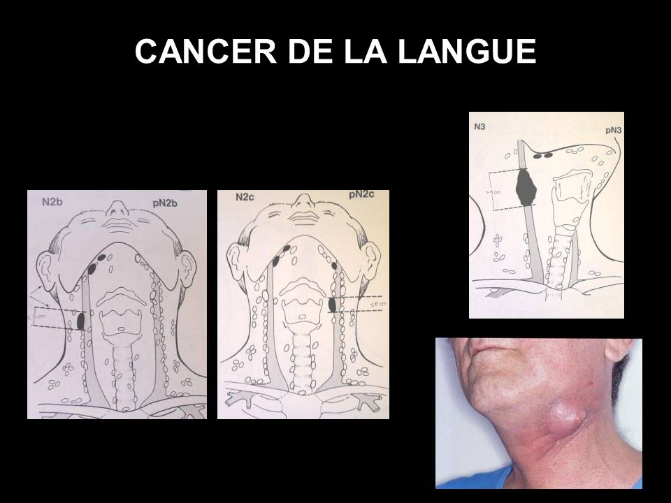 CANCER DE LA LANGUE