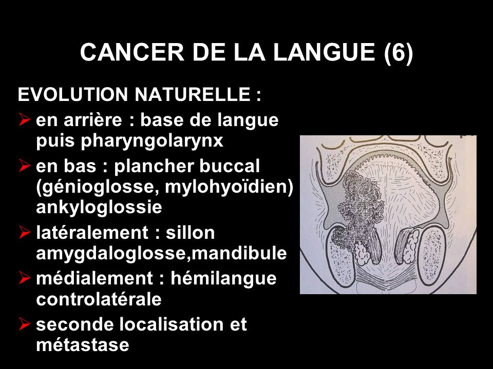 CANCER DE LA LANGUE (6) EVOLUTION NATURELLE :