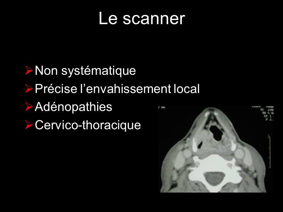 Le scanner Non systématique Précise l'envahissement local Adénopathies
