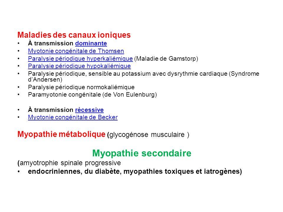 Myopathie secondaire Maladies des canaux ioniques