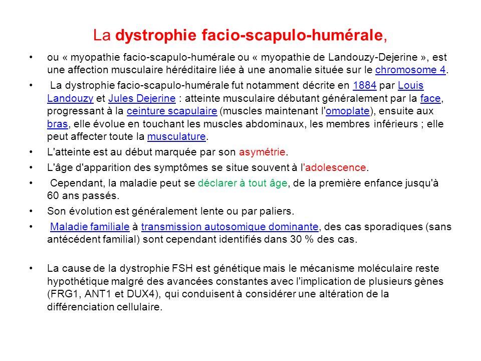 La dystrophie facio-scapulo-humérale,