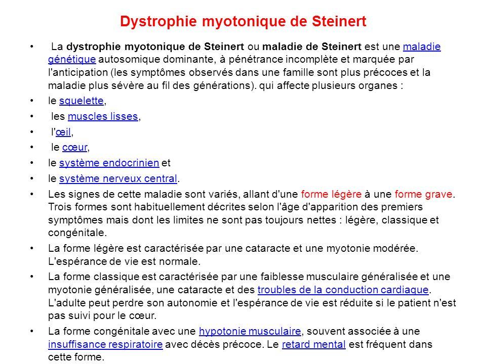 Dystrophie myotonique de Steinert
