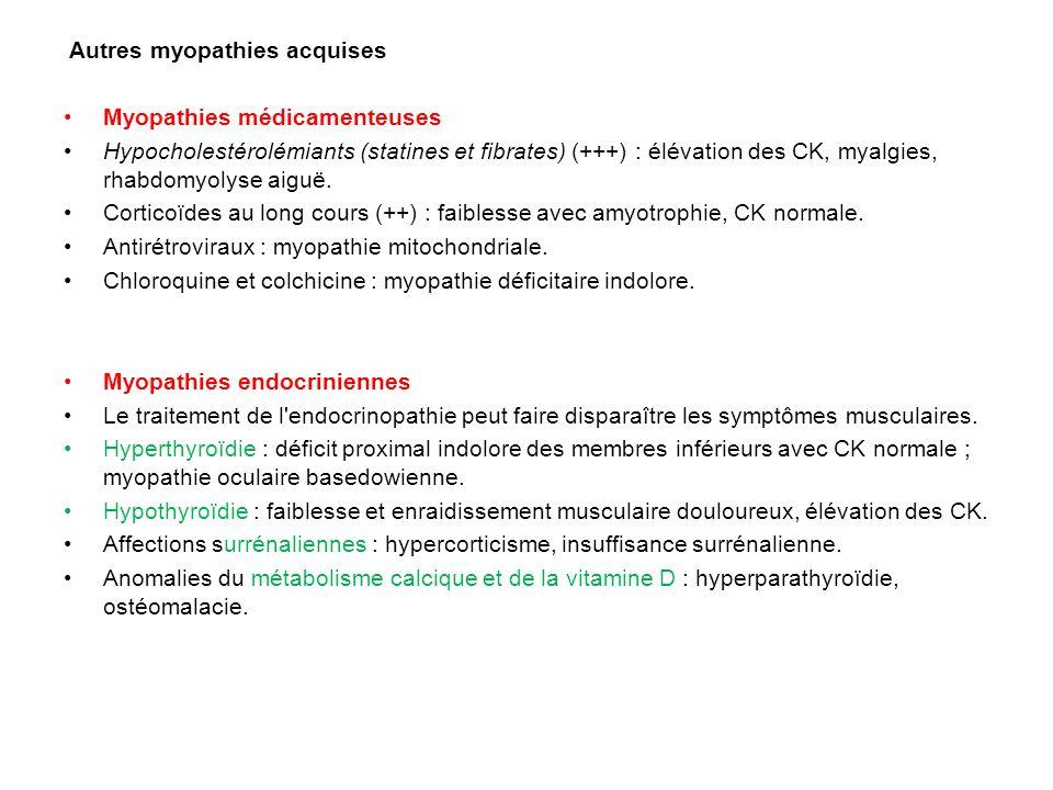 Autres myopathies acquises