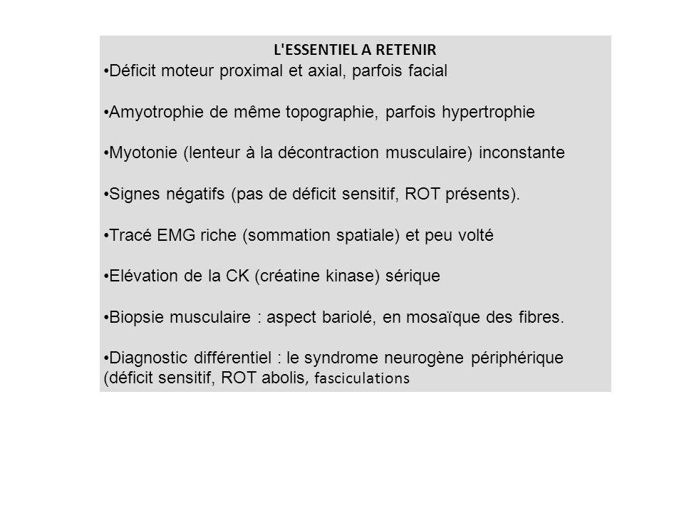 L ESSENTIEL A RETENIR Déficit moteur proximal et axial, parfois facial. Amyotrophie de même topographie, parfois hypertrophie.