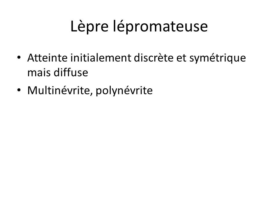 Lèpre lépromateuse Atteinte initialement discrète et symétrique mais diffuse.