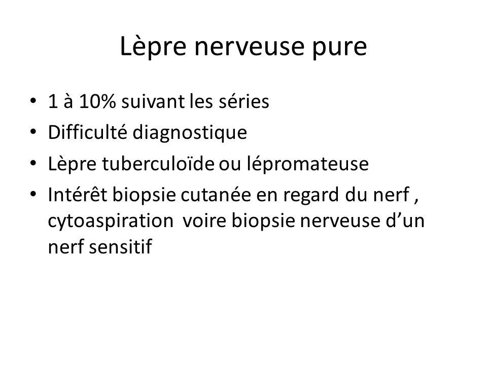 Lèpre nerveuse pure 1 à 10% suivant les séries Difficulté diagnostique
