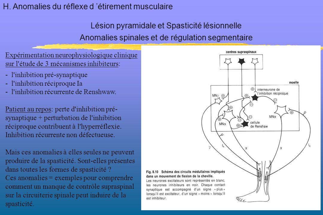 H. Anomalies du réflexe d 'étirement musculaire