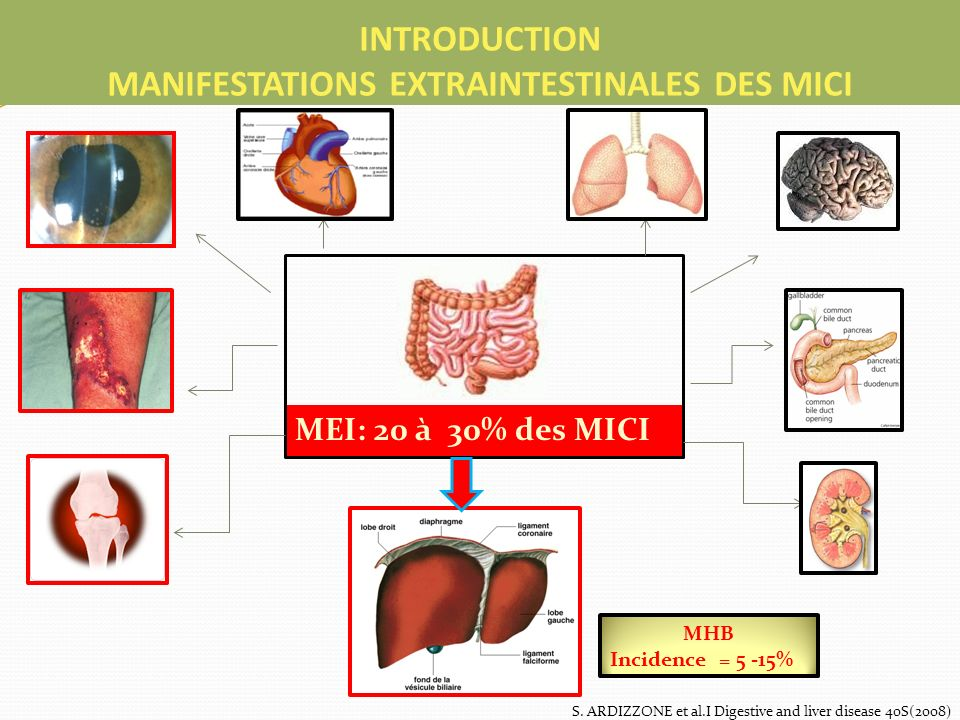 INTRODUCTION MANIFESTATIONS EXTRAINTESTINALES DES MICI