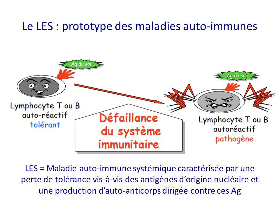Le LES : prototype des maladies auto-immunes