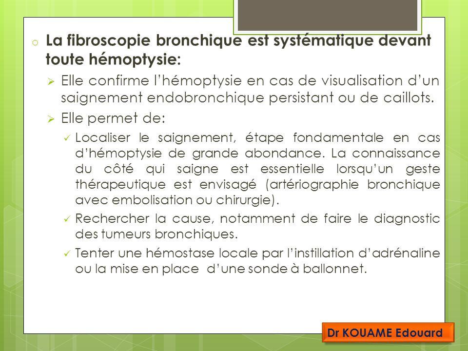 La fibroscopie bronchique est systématique devant toute hémoptysie: