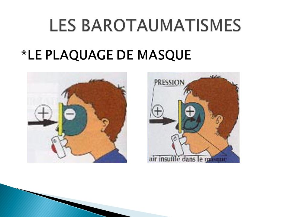 LES BAROTAUMATISMES *LE PLAQUAGE DE MASQUE