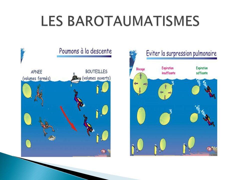 LES BAROTAUMATISMES