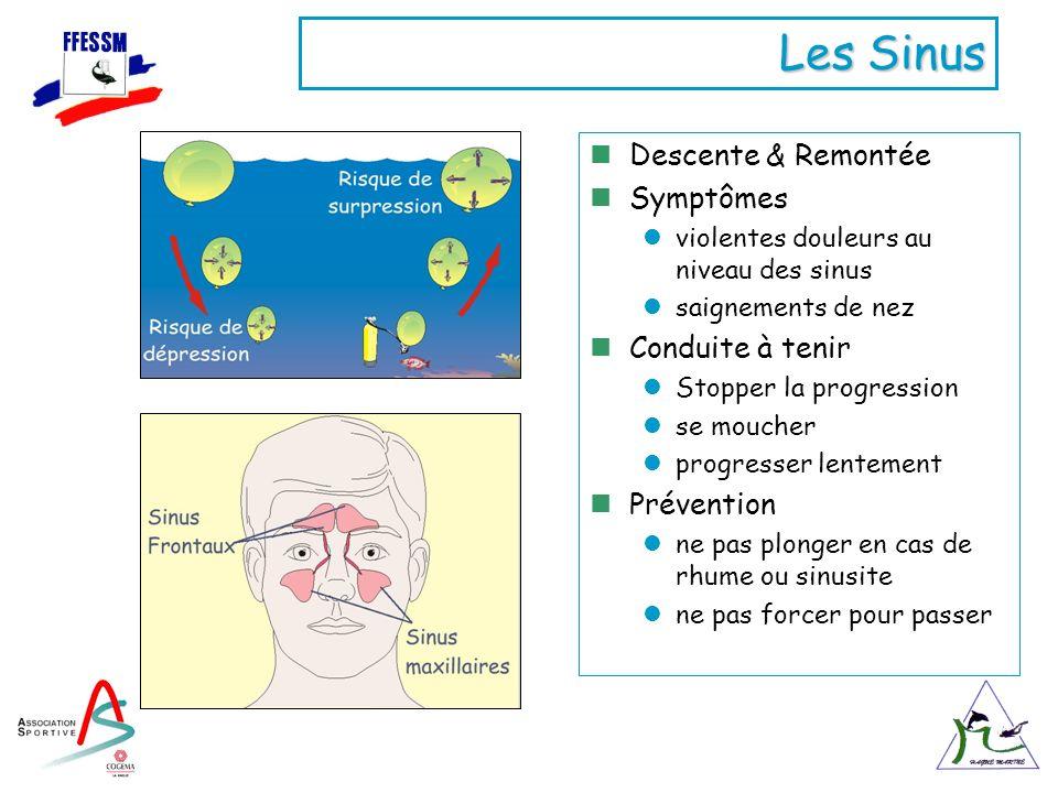 Les Sinus Descente & Remontée Symptômes Conduite à tenir Prévention