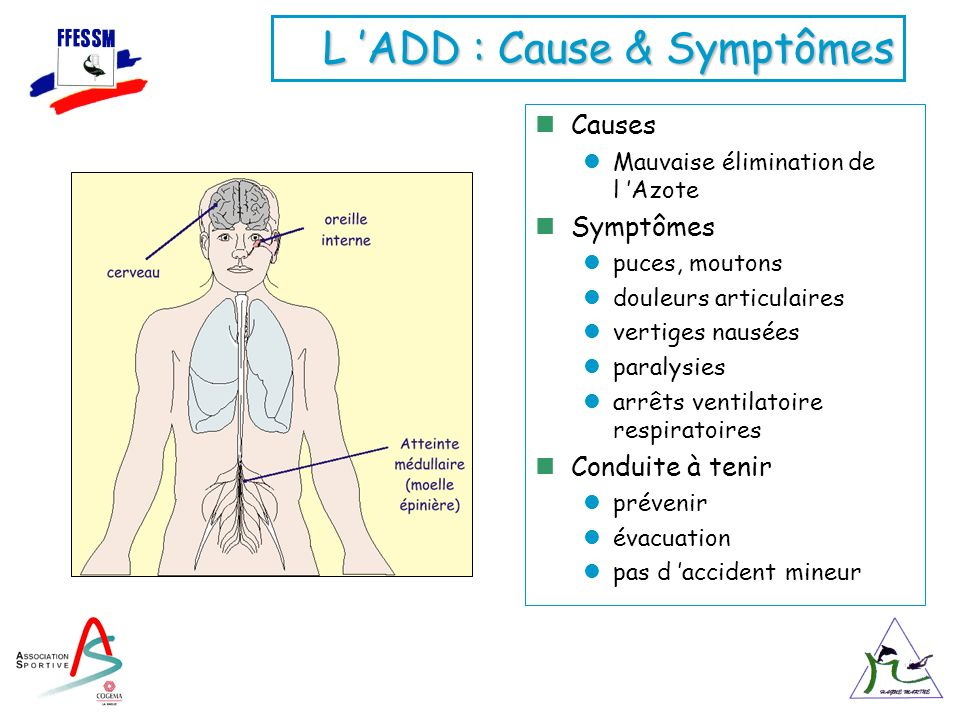 L 'ADD : Cause & Symptômes
