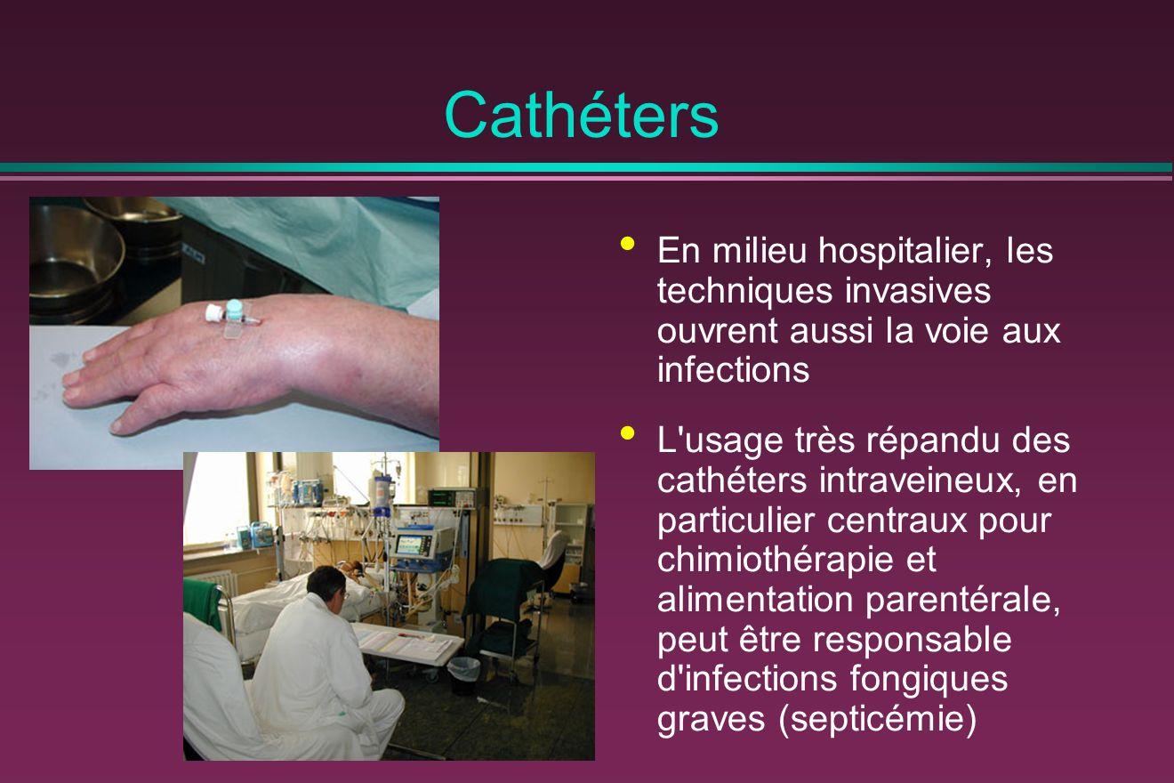 Cathéters En milieu hospitalier, les techniques invasives ouvrent aussi la voie aux infections.