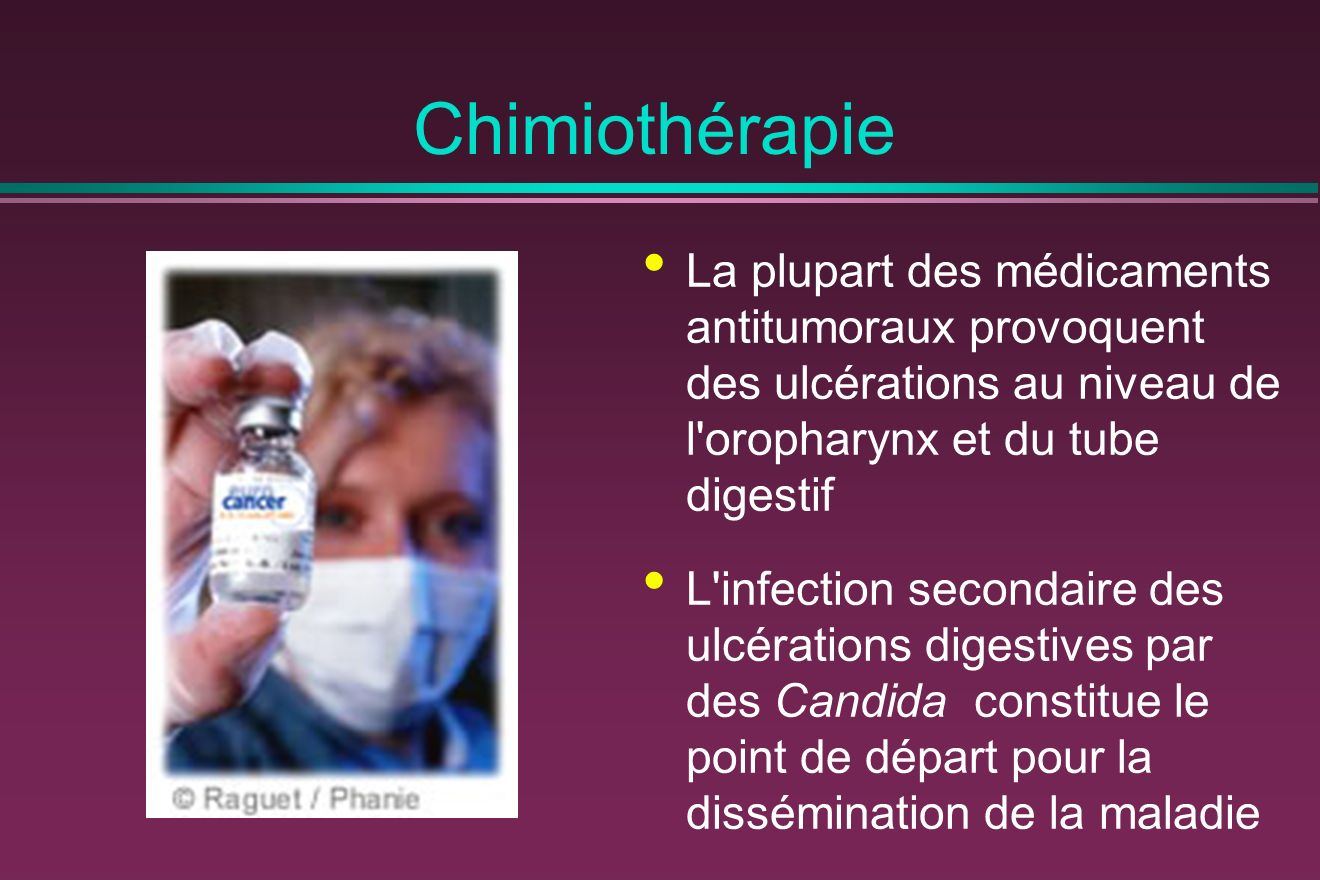 Chimiothérapie La plupart des médicaments antitumoraux provoquent des ulcérations au niveau de l oropharynx et du tube digestif.