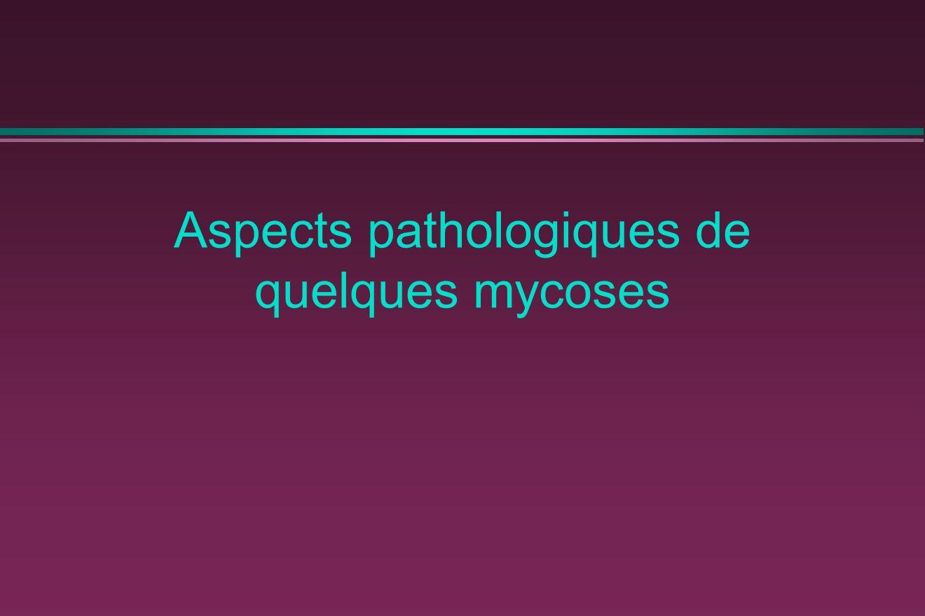 Aspects pathologiques de quelques mycoses