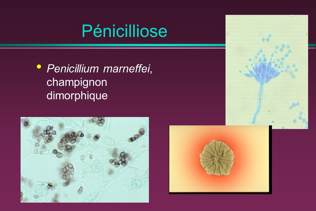 Pénicilliose Penicillium marneffei, champignon dimorphique