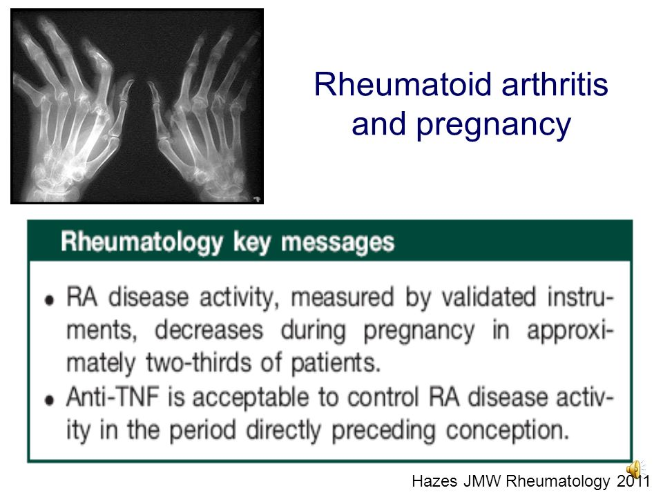 Rheumatoid arthritis and pregnancy